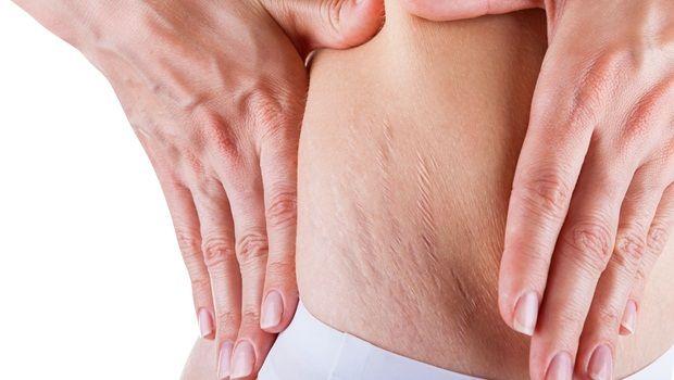 Vitamin E für die Haut - löscht hartnäckige Dehnungsstreifen