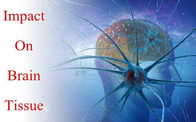 Auswirkungen von Stress - Auswirkungen auf die Gehirngewebe