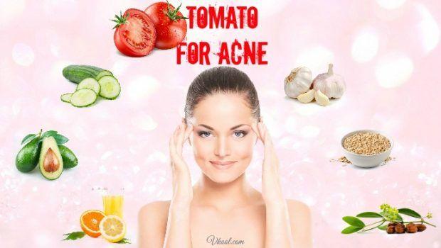 12 Natürliche wege, wie tomaten für akne und akne-narben zu verwenden
