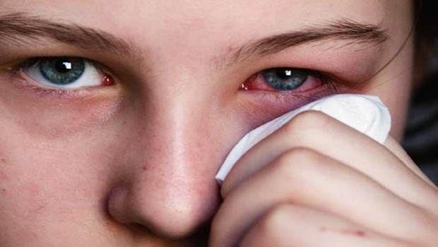 24 Tipps, wie zu hause, ohne augentropfen rote augen zu behandeln