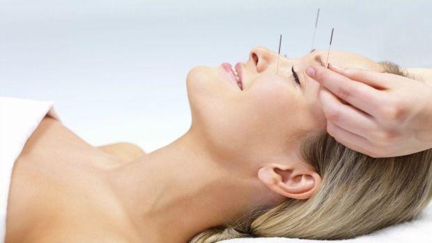 Betrachten Akupunktur