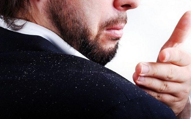 verwendet Mandelöl für die Haare - Mandelöl zur Behandlung von Haarschuppen