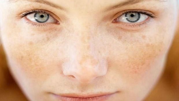 Arten von Hautpigmentierung herunterladen