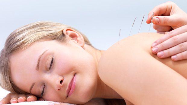 Anwenden Die Akupunktur-Therapie