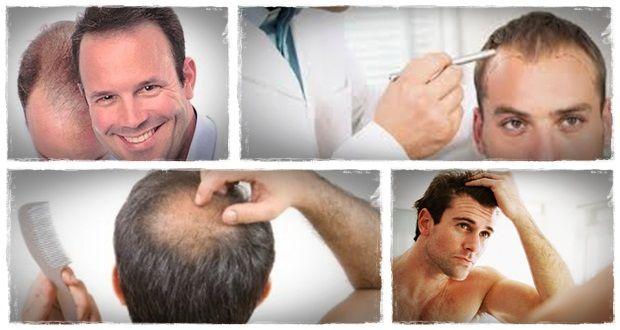natürliche Art und Weise Haar, wie natürlich nachwachsen verloren Haar in 15 Minuten pro Tag 2 nachwachsen