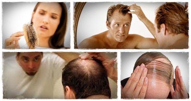 natürliche Art und Weise Haar, wie natürlich nachwachsen verloren Haar in 15 Minuten pro Tag 3 nachwachsen