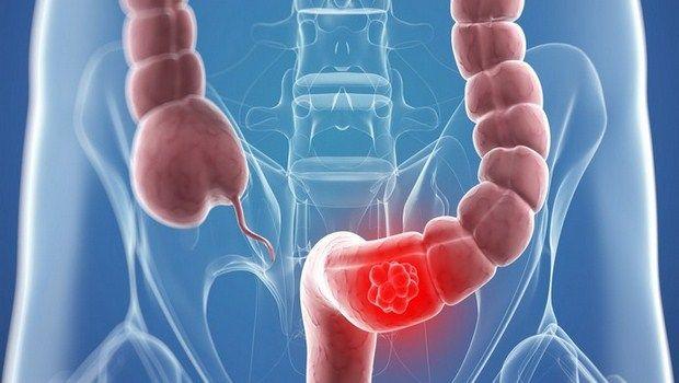 gibt es einige Möglichkeiten, wie Darmkrebs mit natürlichen Mitteln zu verhindern