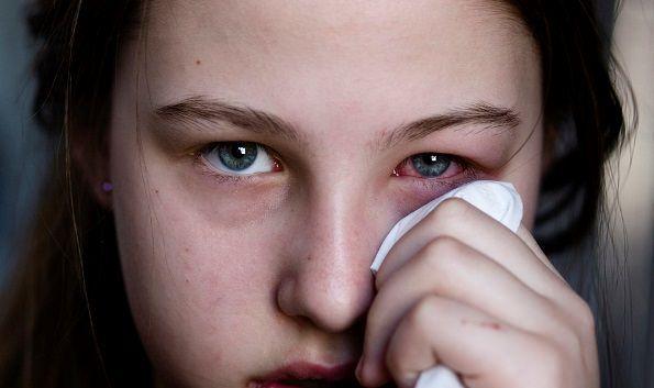 Wie behandeln Pink Eye
